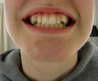 Braces-before
